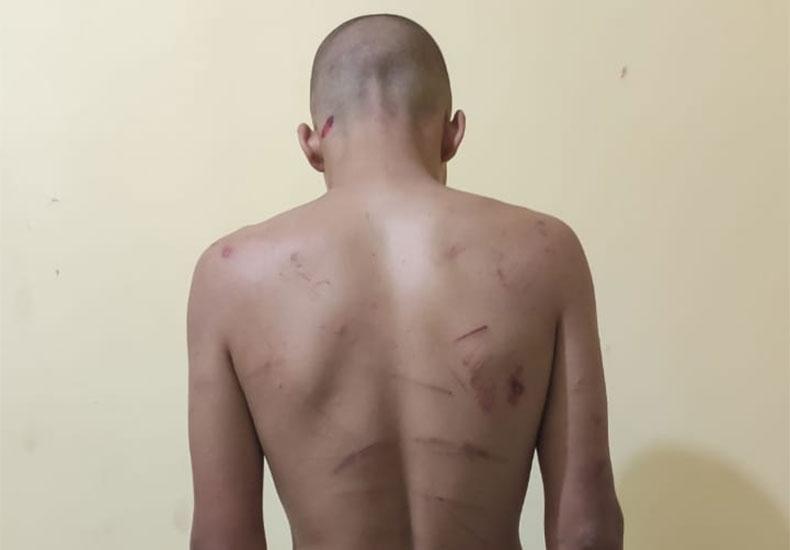 Jovem é preso suspeito de torturar namorado em Eliseu Martins