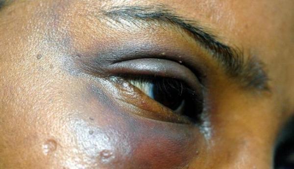 Polícia realiza Operação contra violência doméstica e feminicídio